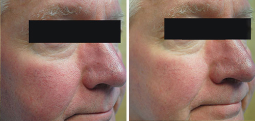 Symptoms and Treatment of Rosacea