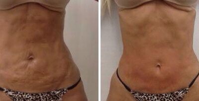Surgical and Non-Surgical Body Contouring