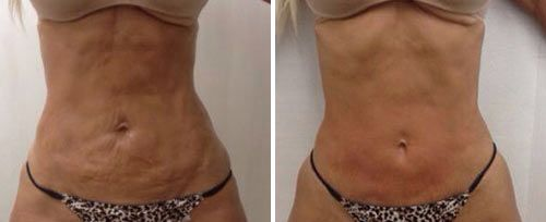 TightSculpting Fat Reduction & Body Contouring