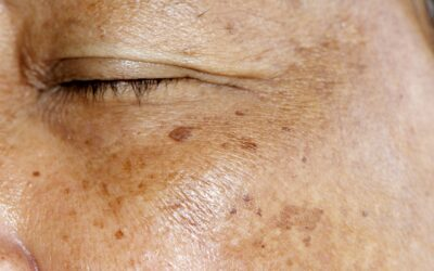 Melasma Causes and Treatment