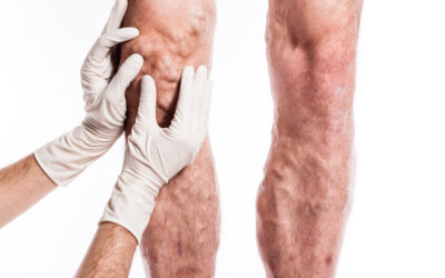 Varicose Veins: Causes, Symptoms & Treatment